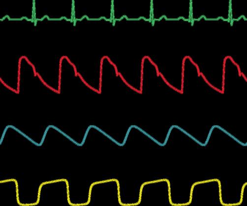 Koszulka Anestezjologiczne Krzywe Damska